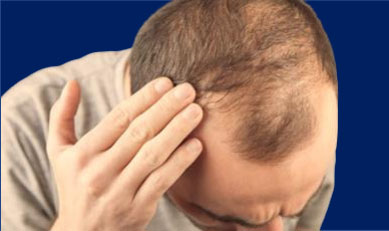Can losing weight cause Hair loss?
